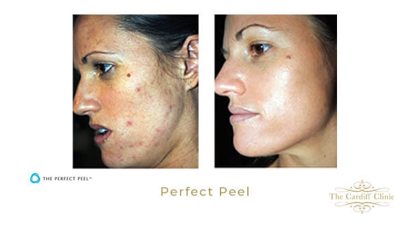 Perfect Peel For Acne