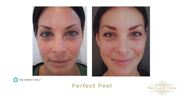 Skin Pigmentation Peel Results