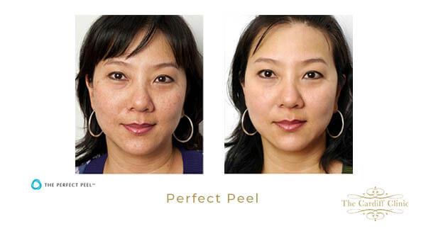 Skin Rejuvenation Peel Results